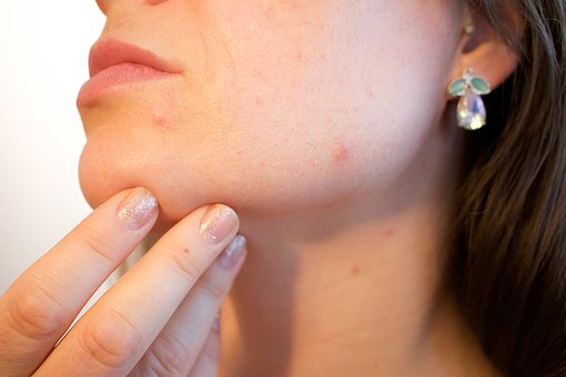 Mumps Reported at Will County's Lewis University; Special MMR Clinics Scheduled